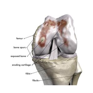 Fig2Knee Osteoarthritis_Labeled