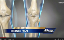 ABC/WPBF – 3D Printing brings improvements in knee surgeries for some