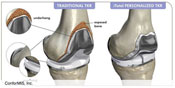 Conformis: iTotal G2 Knee System Available